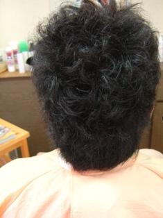男性縮毛矯正施術前 横